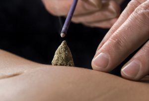 what is moxibustion used for