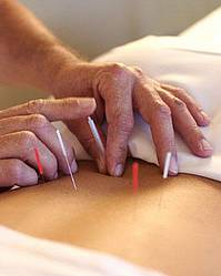 Acupuncture Review Finds Evidence Of Effect